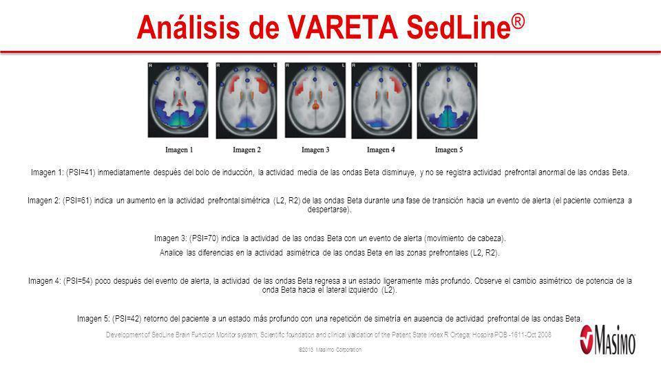 ©2013 Masimo Corporation Análisis de VARETA SedLine ® Imagen 1: (PSI=41) inmediatamente después del bolo de inducción, la actividad media de las ondas
