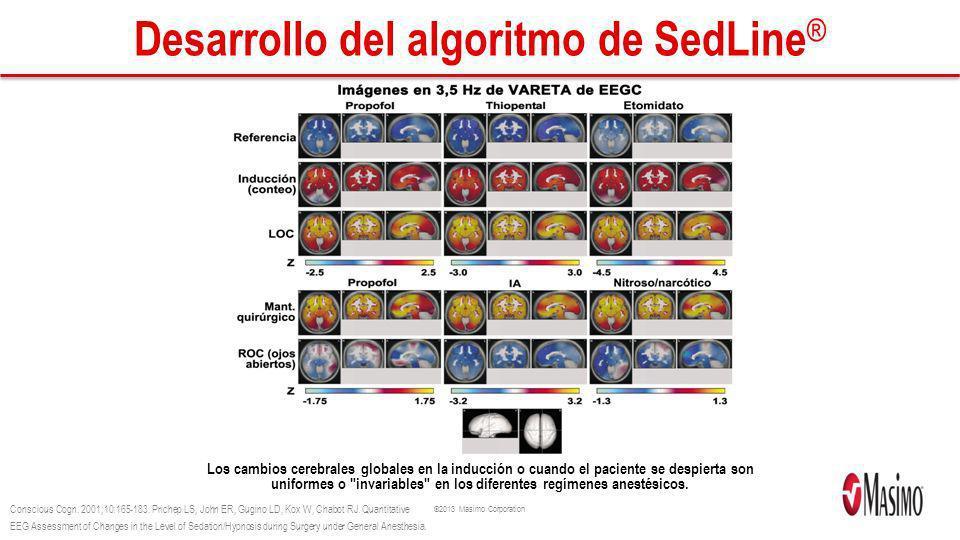 ©2013 Masimo Corporation Desarrollo del algoritmo de SedLine ® Los cambios cerebrales globales en la inducción o cuando el paciente se despierta son u