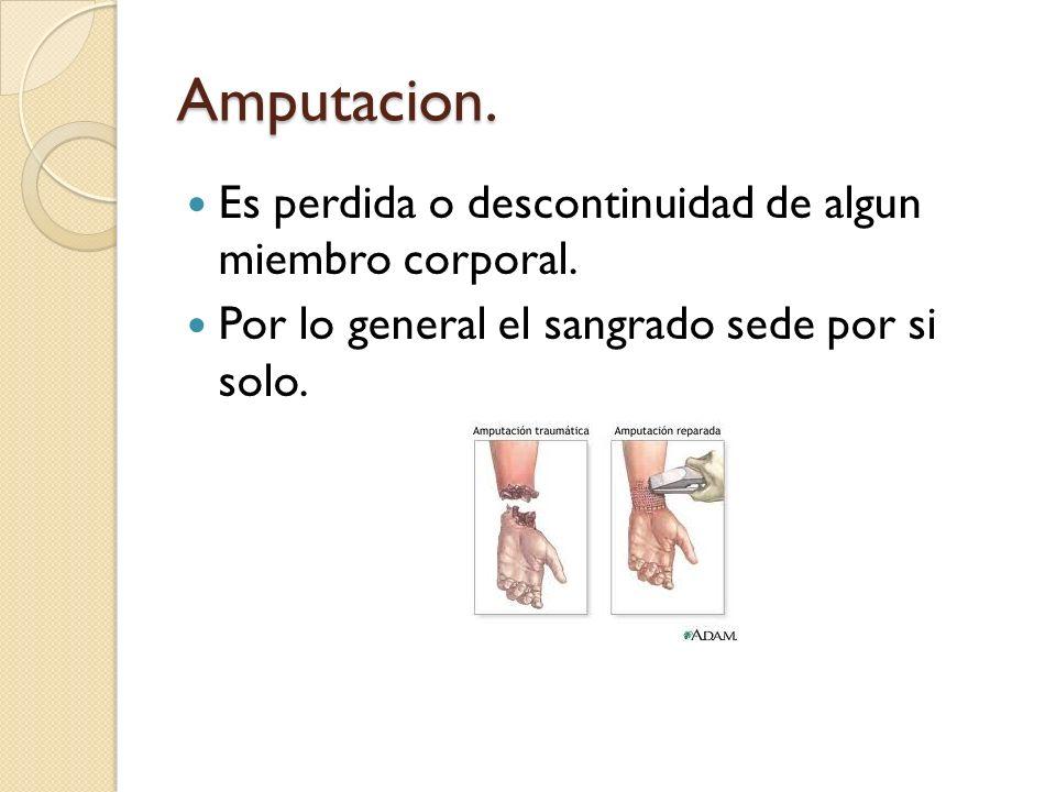 Amputacion. Es perdida o descontinuidad de algun miembro corporal. Por lo general el sangrado sede por si solo.