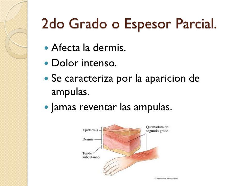 2do Grado o Espesor Parcial. Afecta la dermis. Dolor intenso. Se caracteriza por la aparicion de ampulas. Jamas reventar las ampulas.