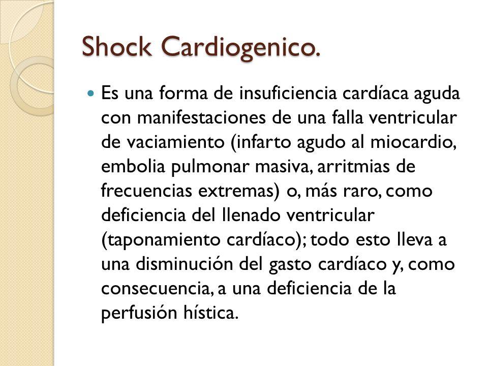 Shock Cardiogenico. Es una forma de insuficiencia cardíaca aguda con manifestaciones de una falla ventricular de vaciamiento (infarto agudo al miocard
