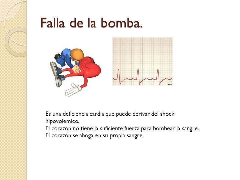 Falla de la bomba. Es una deficiencia cardia que puede derivar del shock hipovolemico. El corazón no tiene la suficiente fuerza para bombear la sangre