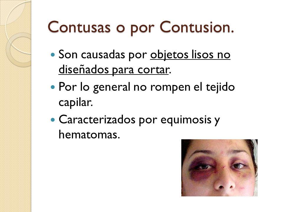 Contusas o por Contusion. Son causadas por objetos lisos no diseñados para cortar. Por lo general no rompen el tejido capilar. Caracterizados por equi