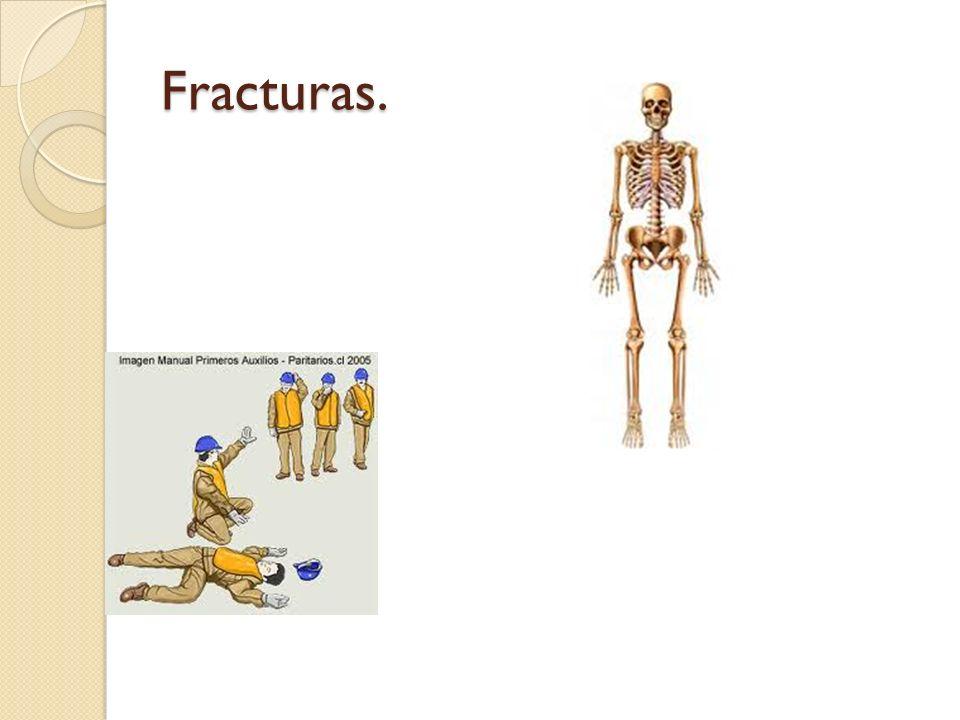 Fracturas.
