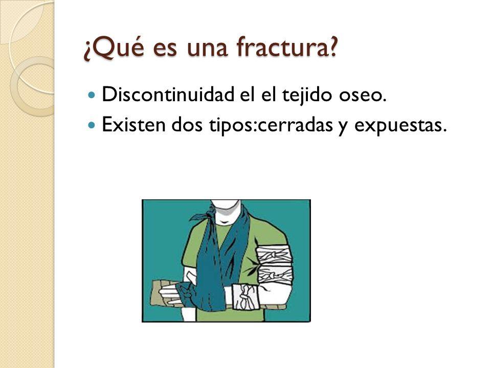 ¿Qué es una fractura? Discontinuidad el el tejido oseo. Existen dos tipos:cerradas y expuestas.