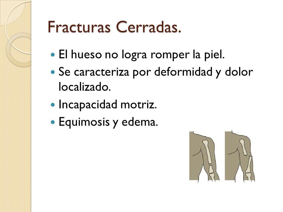 Fracturas Cerradas. El hueso no logra romper la piel. Se caracteriza por deformidad y dolor localizado. Incapacidad motriz. Equimosis y edema.