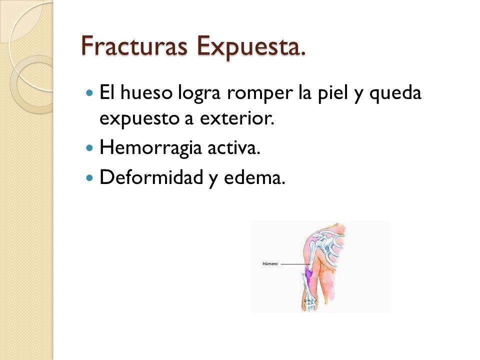 Fracturas Expuesta. El hueso logra romper la piel y queda expuesto a exterior. Hemorragia activa. Deformidad y edema.