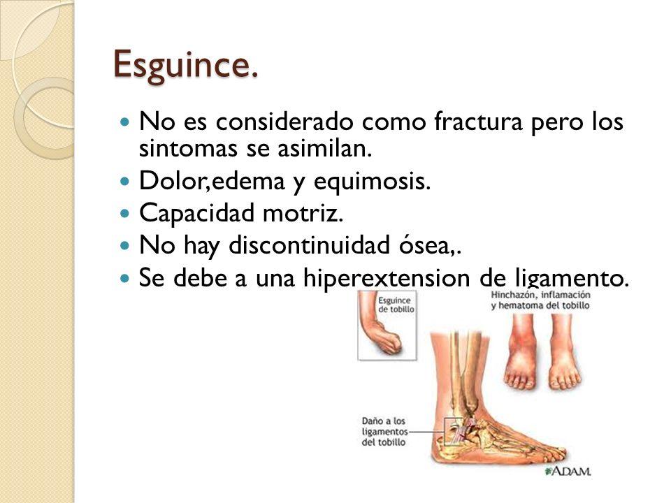Esguince. No es considerado como fractura pero los sintomas se asimilan. Dolor,edema y equimosis. Capacidad motriz. No hay discontinuidad ósea,. Se de
