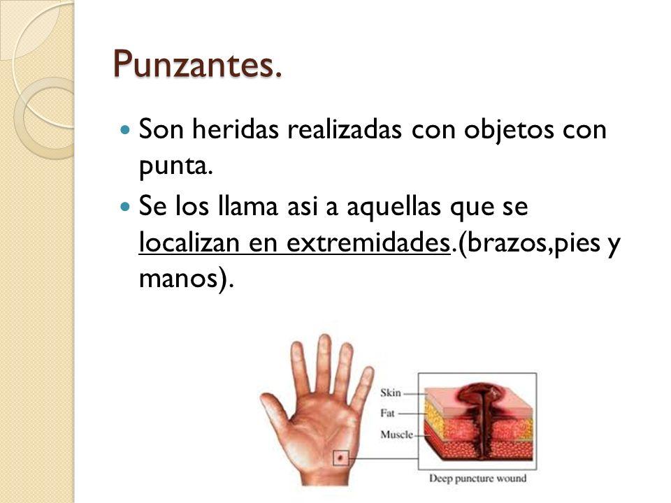 Punzantes. Son heridas realizadas con objetos con punta. Se los llama asi a aquellas que se localizan en extremidades.(brazos,pies y manos).