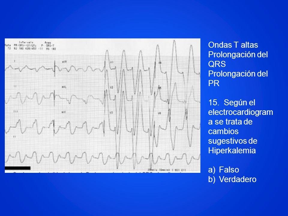 Ondas T altas Prolongación del QRS Prolongación del PR 15. Según el electrocardiogram a se trata de cambios sugestivos de Hiperkalemia a)Falso b)Verda