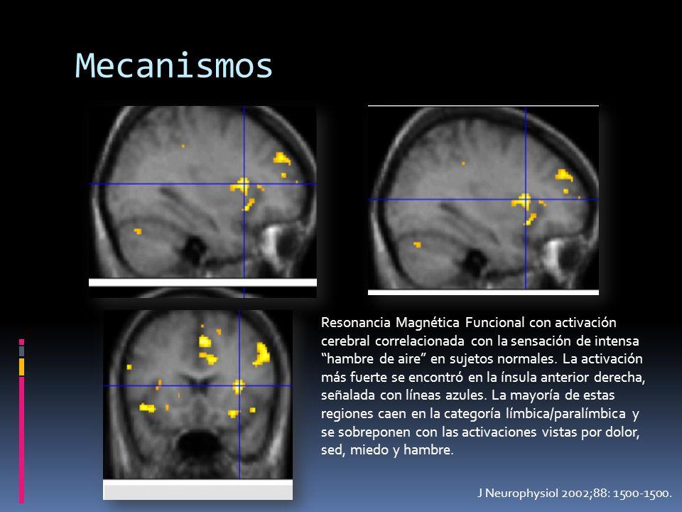 J Neurophysiol 2002;88: 1500-1500. Mecanismos Resonancia Magnética Funcional con activación cerebral correlacionada con la sensación de intensa hambre