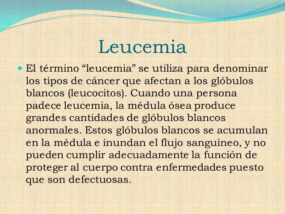 Leucemia El término leucemia se utiliza para denominar los tipos de cáncer que afectan a los glóbulos blancos (leucocitos).