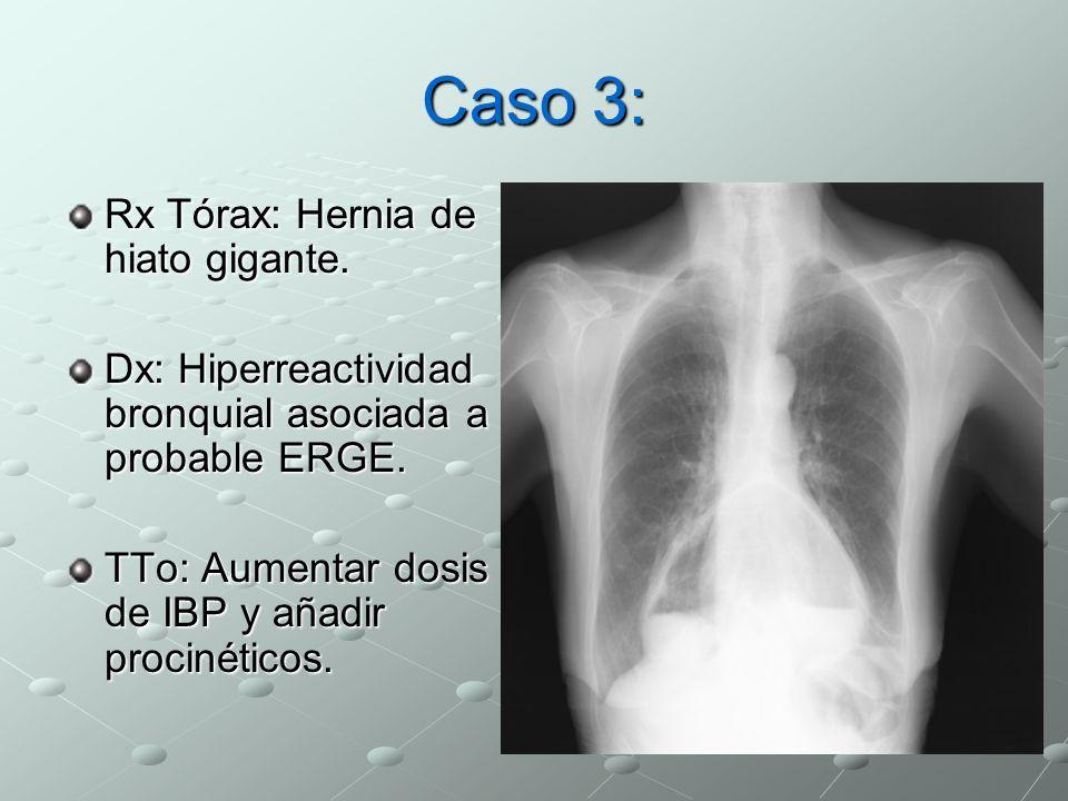 Caso 3: Rx Tórax: Hernia de hiato gigante. Dx: Hiperreactividad bronquial asociada a probable ERGE. TTo: Aumentar dosis de IBP y añadir procinéticos.