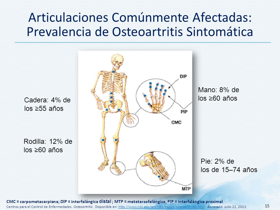 15 Articulaciones Comúnmente Afectadas: Prevalencia de Osteoartritis Sintomática Mano: 8% de los 60 años Pie: 2% de los de 15–74 años Rodilla: 12% de los 60 años Cadera: 4% de los 55 años CMC = carpometacarpiana; DlP = interfalángica distal ; MTP = metatarsofalángica; PlP = interfalángica proximal Centros para el Control de Enfermedades.