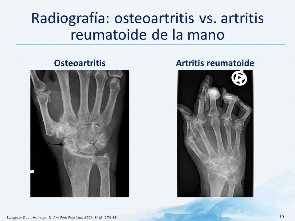 Radiografía: osteoartritis vs.