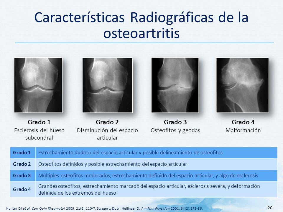 Características Radiográficas de la osteoartritis 20 Hunter DJ et al.