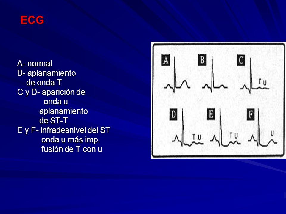ECG ECG A- normal B- aplanamiento de onda T de onda T C y D- aparición de onda u onda u aplanamiento aplanamiento de ST-T de ST-T E y F- infradesnivel