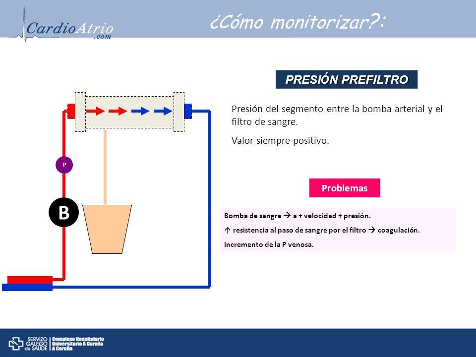 ¿Cómo monitorizar ?: B P Problemas Bomba de sangre a + velocidad + presión. resistencia al paso de sangre por el filtro coagulación. Incremento de la
