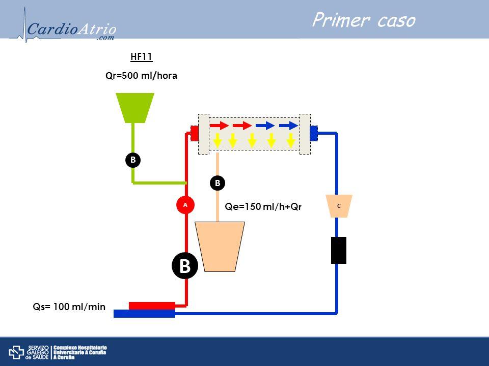 Primer caso A B C B HF11 Qr=500 ml/hora Qs= 100 ml/min B Qe=150 ml/h+Qr