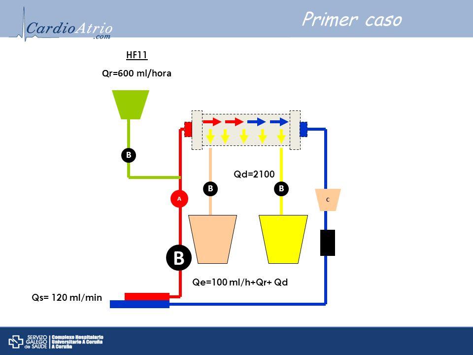 Primer caso A B C B HF11 Qr=600 ml/hora Qs= 120 ml/min B Qe=100 ml/h+Qr+ Qd B Qd=2100