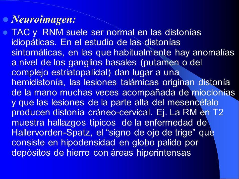 La sintomatología desaparece con el bloqueo de la placa neuromuscular, del nervio periférico y con la anestesia raquídea. Este comportamiento demuestr