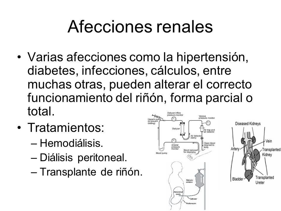 Afecciones renales Varias afecciones como la hipertensión, diabetes, infecciones, cálculos, entre muchas otras, pueden alterar el correcto funcionamie