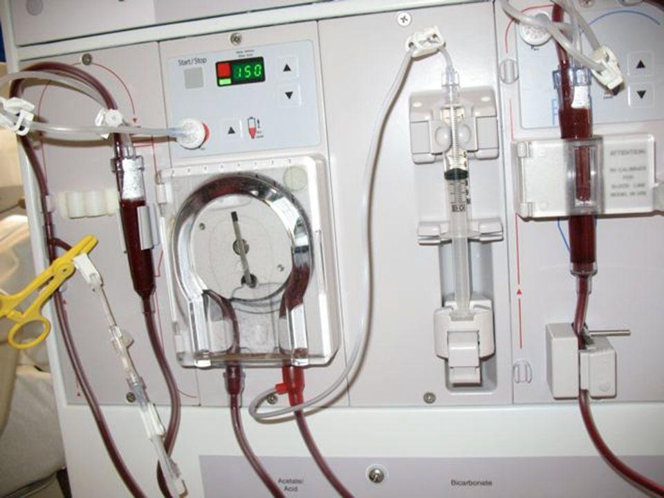 Intercambio de sustancias y agua usando como membrana el peritoneo del propio paciente.