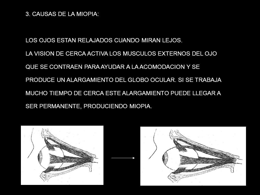 3. CAUSAS DE LA MIOPIA: LOS OJOS ESTAN RELAJADOS CUANDO MIRAN LEJOS. LA VISION DE CERCA ACTIVA LOS MUSCULOS EXTERNOS DEL OJO QUE SE CONTRAEN PARA AYUD