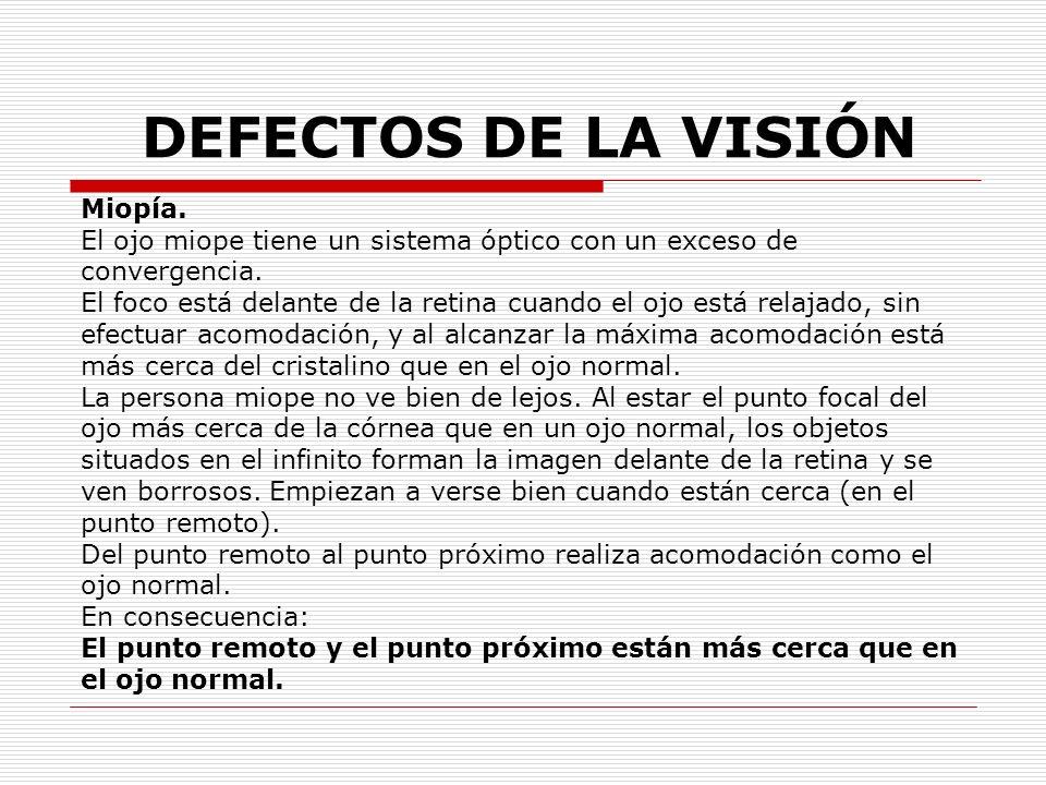 DEFECTOS DE LA VISIÓN Miopía. El ojo miope tiene un sistema óptico con un exceso de convergencia. El foco está delante de la retina cuando el ojo está