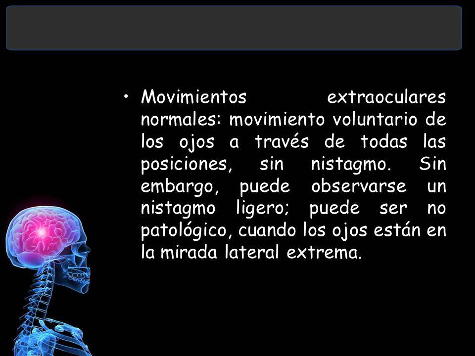 Movimientos extraoculares normales: movimiento voluntario de los ojos a través de todas las posiciones, sin nistagmo. Sin embargo, puede observarse un