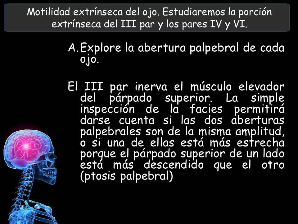 Motilidad extrínseca del ojo. Estudiaremos la porción extrínseca del III par y los pares IV y VI. A.Explore la abertura palpebral de cada ojo. El III