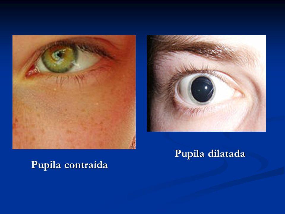 Pupila contraída Pupila dilatada