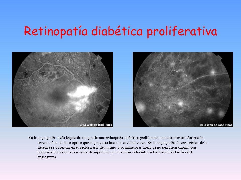 Retinopatía diabética proliferativa En la angiografía de la izquierda se aprecia una retinopatía diabética proliferante con una neovascularización sev