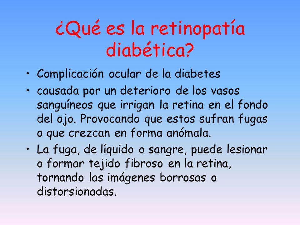 ¿Qué es la retinopatía diabética? Complicación ocular de la diabetes causada por un deterioro de los vasos sanguíneos que irrigan la retina en el fond