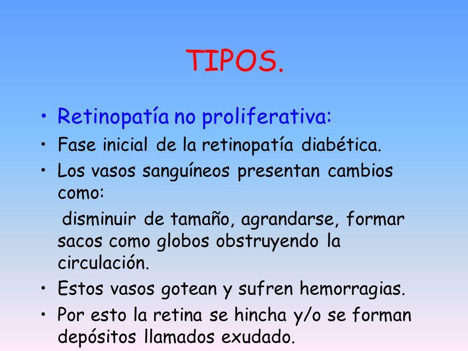 TIPOS. Retinopatía no proliferativa: Fase inicial de la retinopatía diabética. Los vasos sanguíneos presentan cambios como: disminuir de tamaño, agran