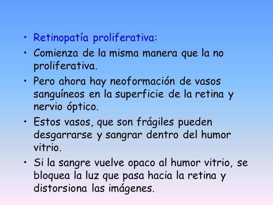 Retinopatía proliferativa: Comienza de la misma manera que la no proliferativa. Pero ahora hay neoformación de vasos sanguíneos en la superficie de la