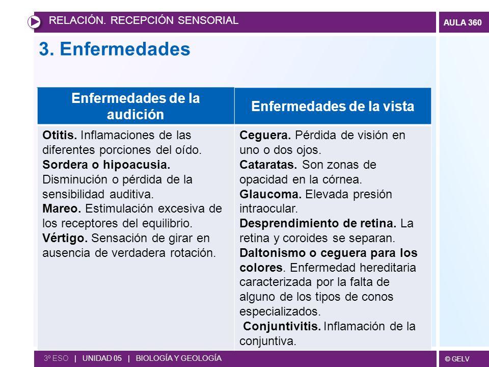 © GELV AULA 360 RELACIÓN. RECEPCIÓN SENSORIAL 3º ESO | UNIDAD 05 | BIOLOGÍA Y GEOLOGÍA Enfermedades de la audición Enfermedades de la vista Otitis. In