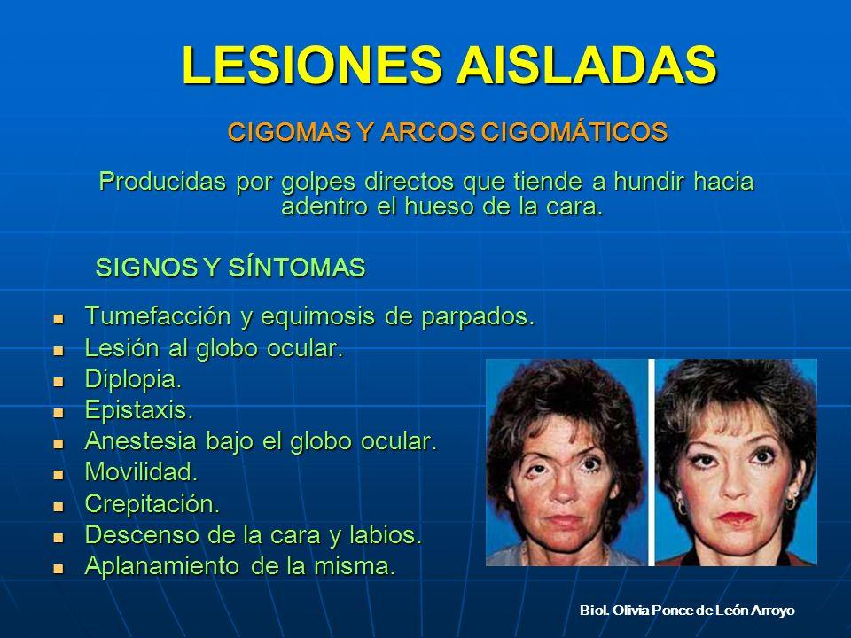 CIGOMAS Y ARCOS CIGOMÁTICOS CIGOMAS Y ARCOS CIGOMÁTICOS Producidas por golpes directos que tiende a hundir hacia adentro el hueso de la cara.