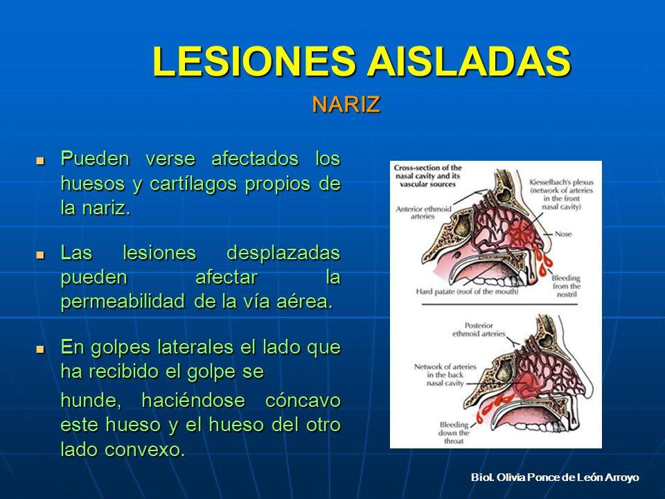 Pueden verse afectados los huesos y cartílagos propios de la nariz.