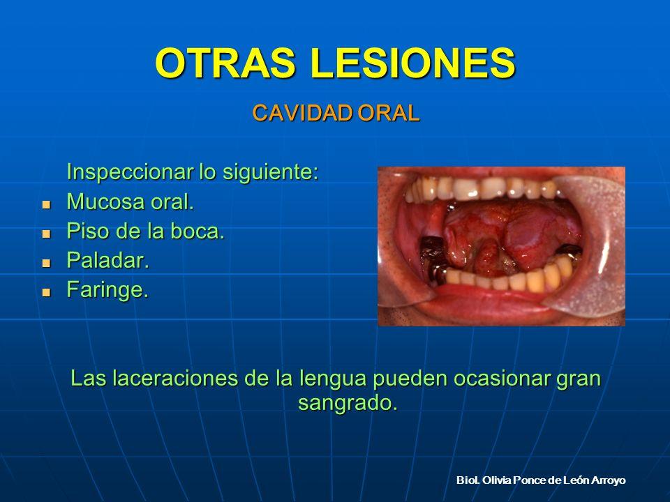 OTRAS LESIONES CAVIDAD ORAL Inspeccionar lo siguiente: Mucosa oral.