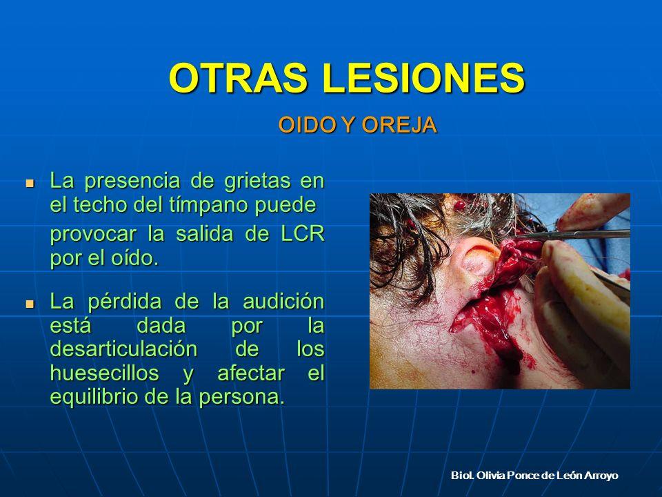 La presencia de grietas en el techo del tímpano puede La presencia de grietas en el techo del tímpano puede provocar la salida de LCR por el oído.