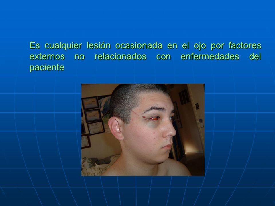 Es cualquier lesión ocasionada en el ojo por factores externos no relacionados con enfermedades del paciente