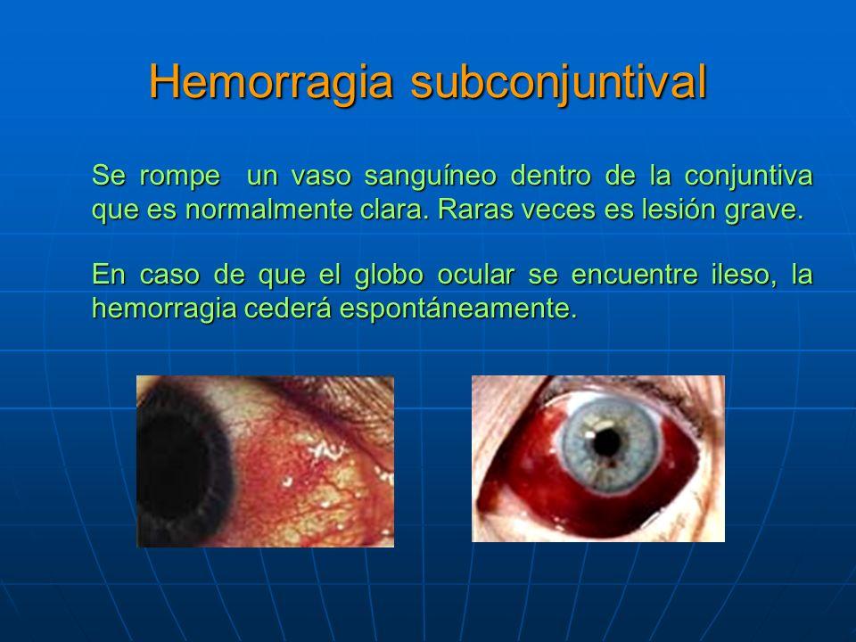 Hemorragia subconjuntival Se rompe un vaso sanguíneo dentro de la conjuntiva que es normalmente clara.