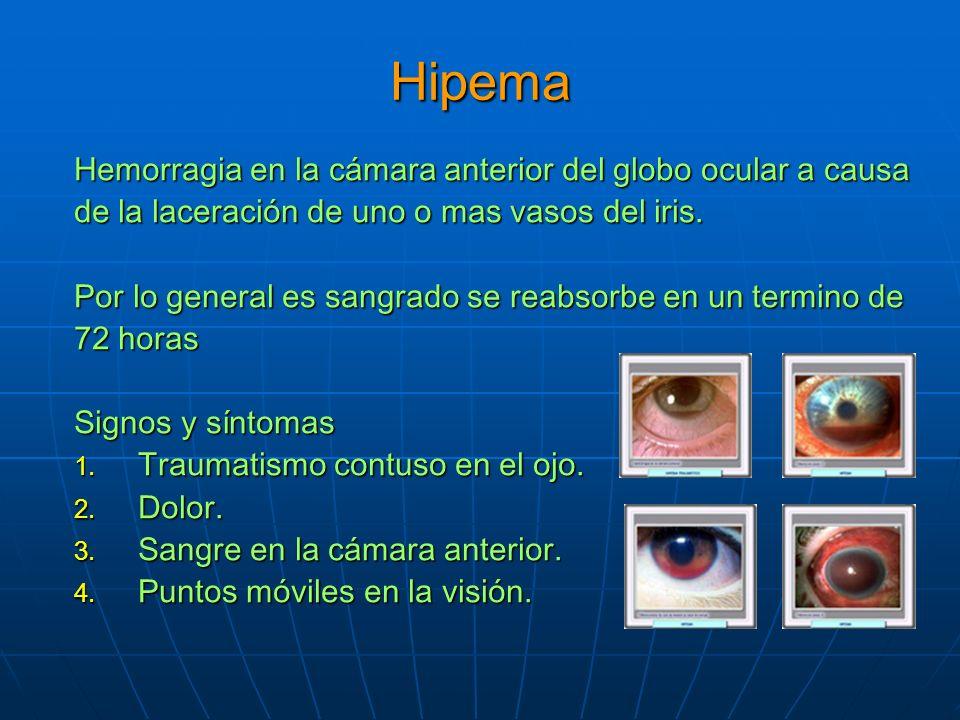 Hipema Hemorragia en la cámara anterior del globo ocular a causa de la laceración de uno o mas vasos del iris.