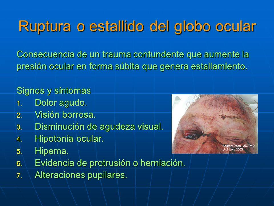Ruptura o estallido del globo ocular Consecuencia de un trauma contundente que aumente la presión ocular en forma súbita que genera estallamiento.