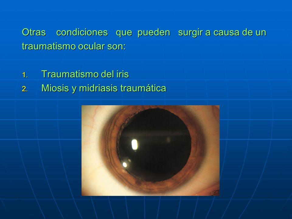 Otras condiciones que pueden surgir a causa de un traumatismo ocular son: 1.