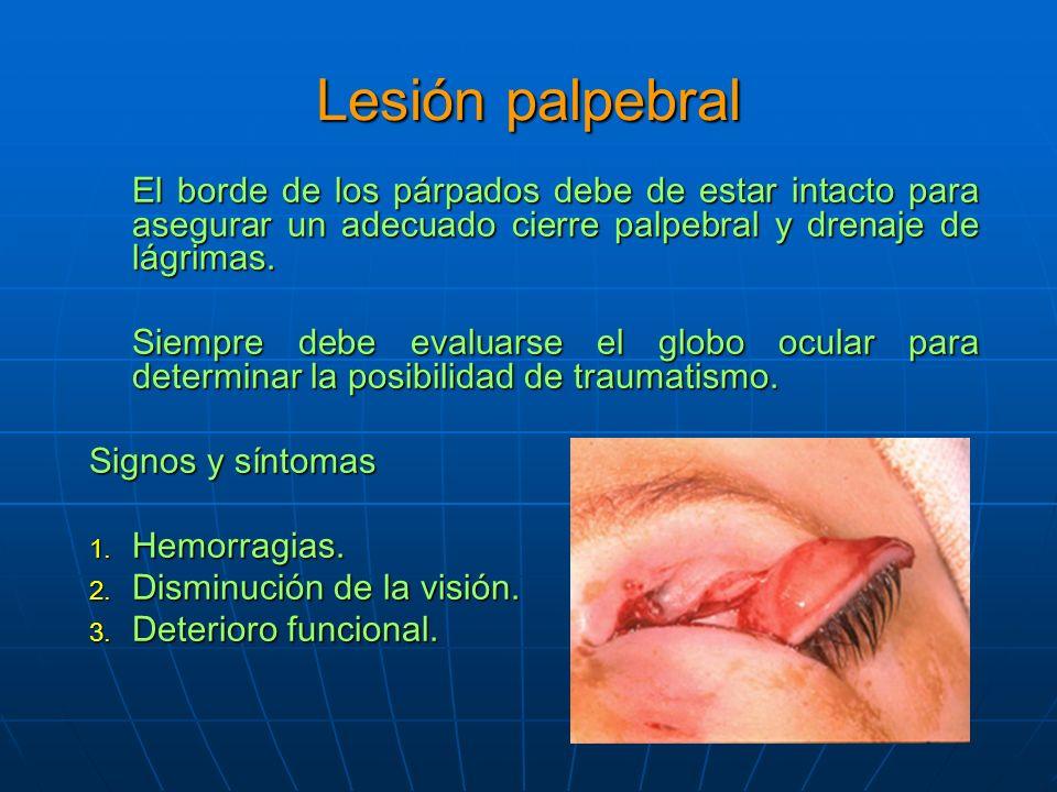 Lesión palpebral El borde de los párpados debe de estar intacto para asegurar un adecuado cierre palpebral y drenaje de lágrimas.