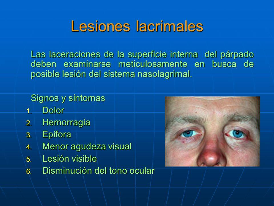 Lesiones lacrimales Las laceraciones de la superficie interna del párpado deben examinarse meticulosamente en busca de posible lesión del sistema nasolagrimal.