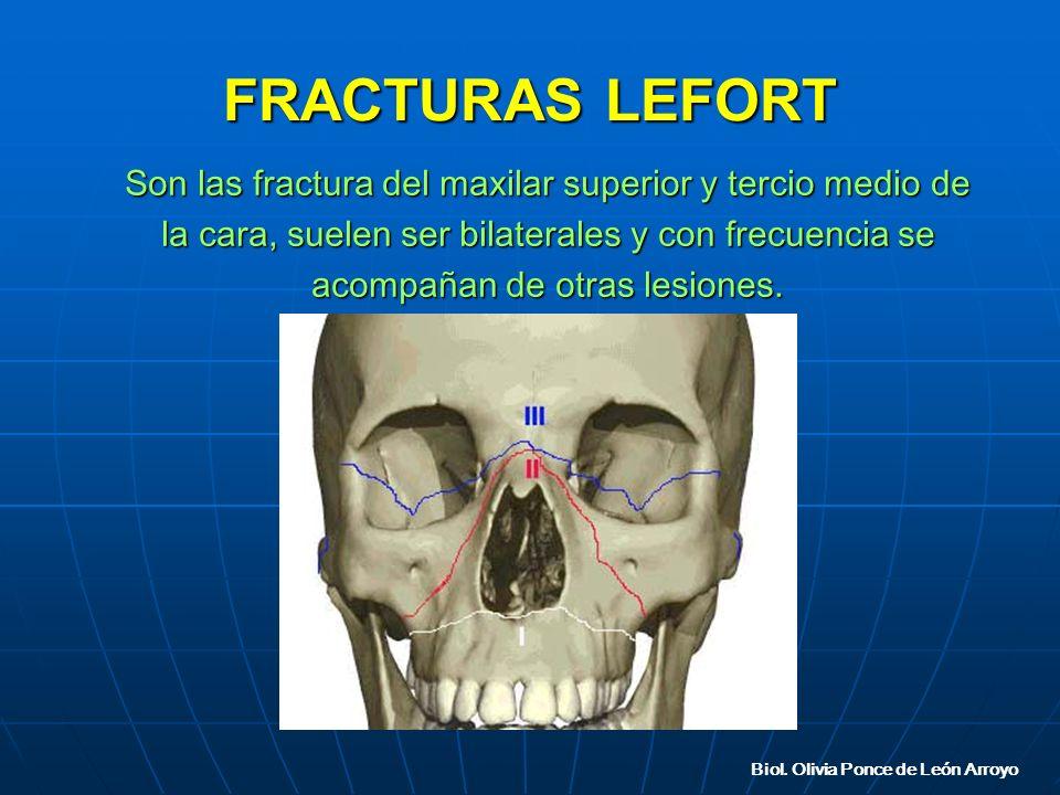 FRACTURAS LEFORT Son las fractura del maxilar superior y tercio medio de la cara, suelen ser bilaterales y con frecuencia se acompañan de otras lesiones.