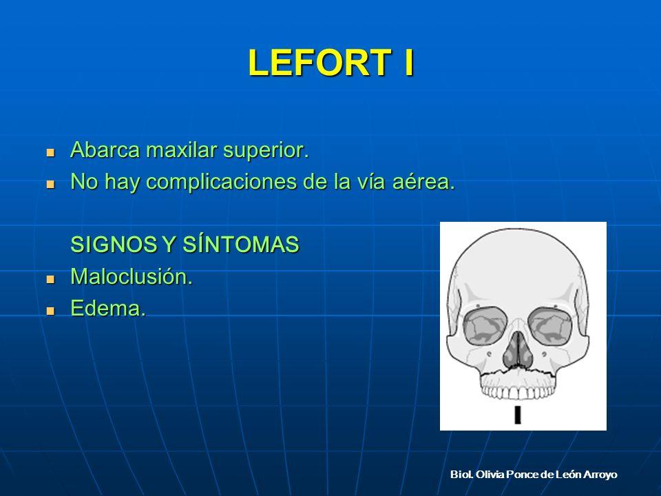 LEFORT I Abarca maxilar superior.Abarca maxilar superior.